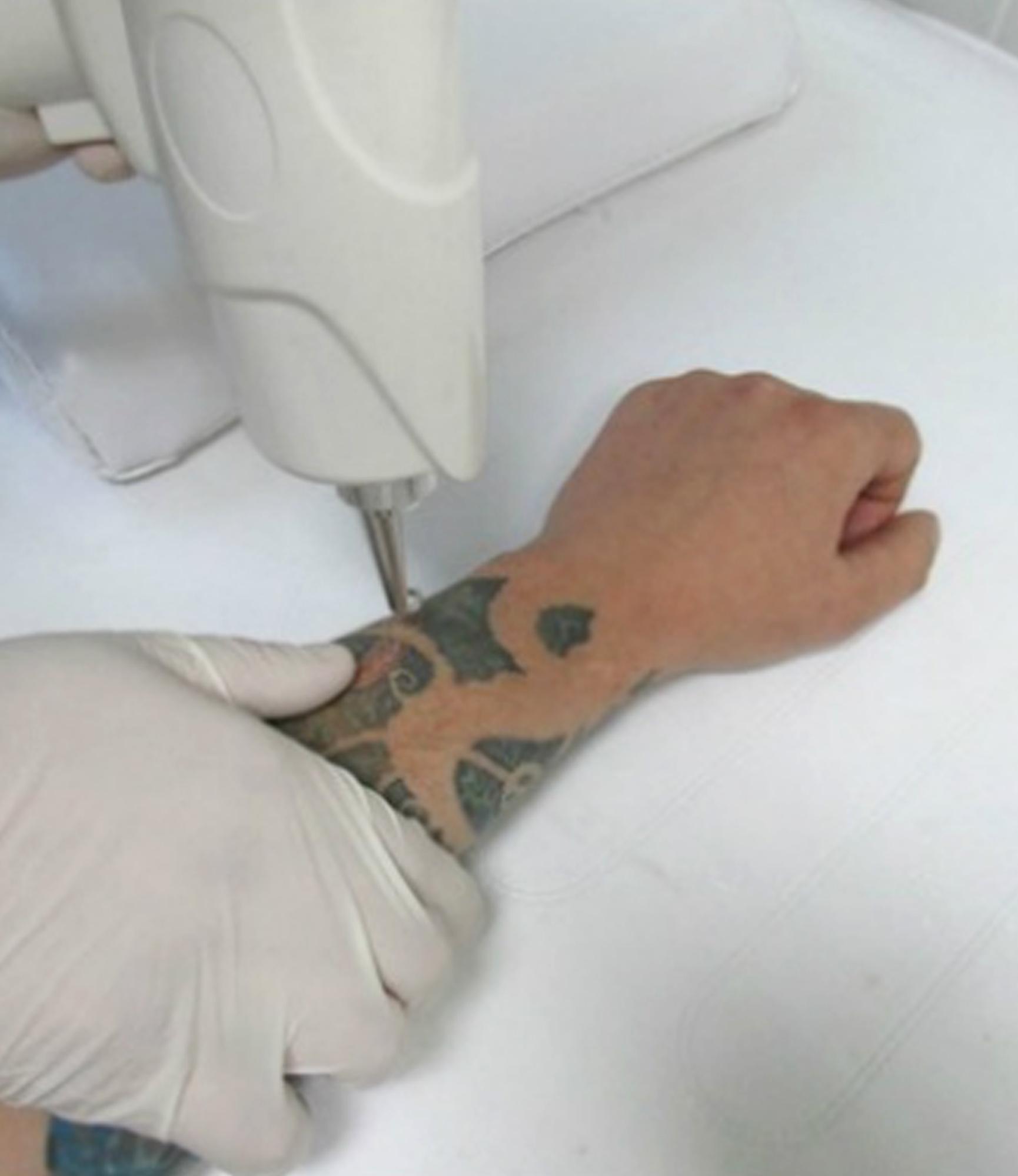Лазер для выведения тату